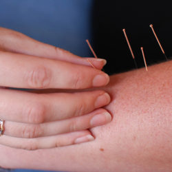 Acupuncture - Woodside Clinic in Dunstable and Leighton Buzzard